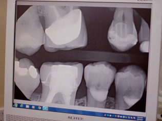 dental xray, hooksett nh